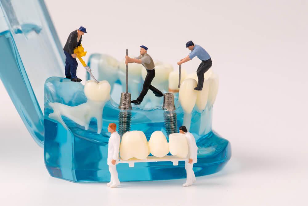 Klinike dentare ne tirane