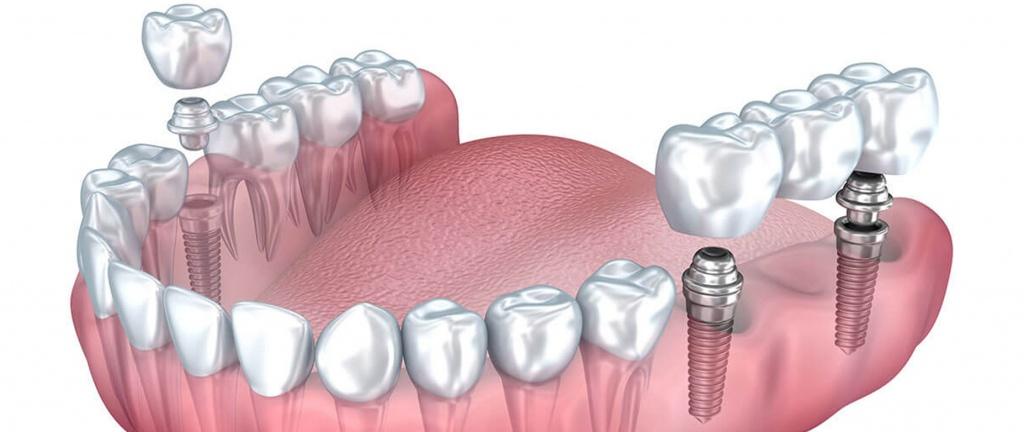 Implante Dentare ne Shqiperi