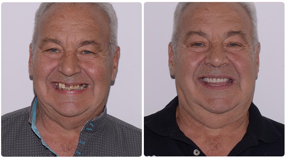 para dhe pas implanteve dentare