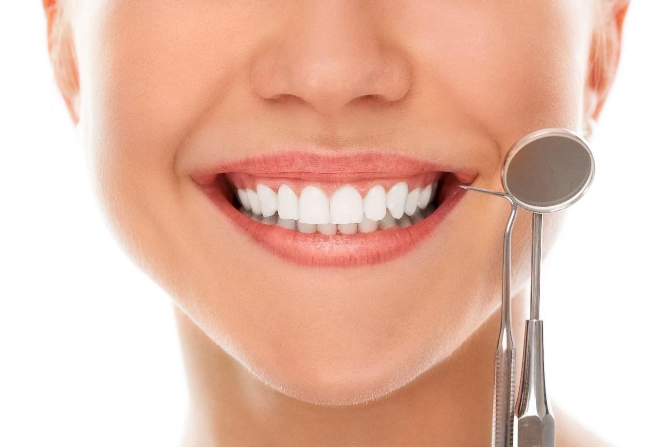 rregullim i buzeqeshjes