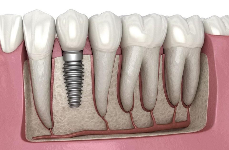 ngarkim implanti te menjehershem
