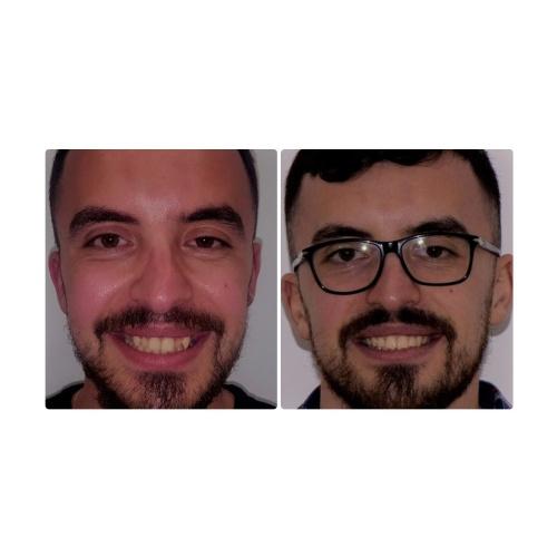 3- Trattamento Ortodontico
