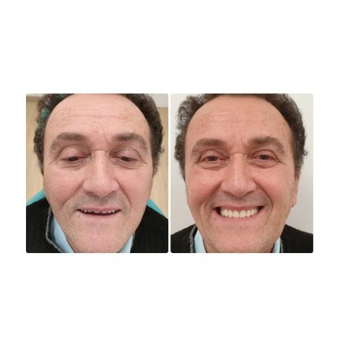4-L'overdenture Implantologia