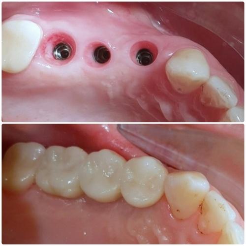 5- Implantologia Dentale